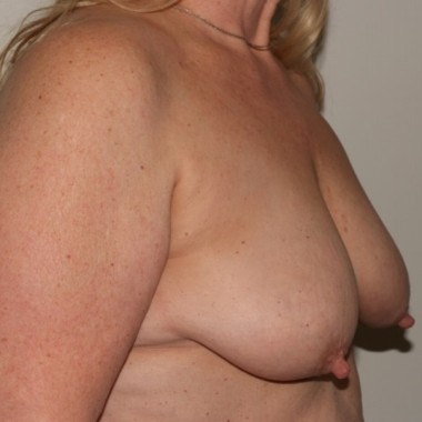 mastopexy2,oblique,before