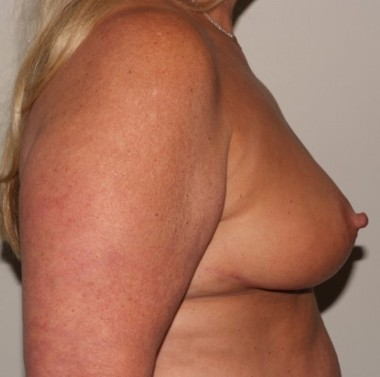 mastopexy2,side,after