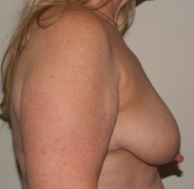 mastopexy2,side,before
