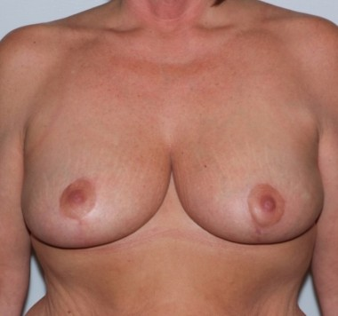 mastopexy3,front,after