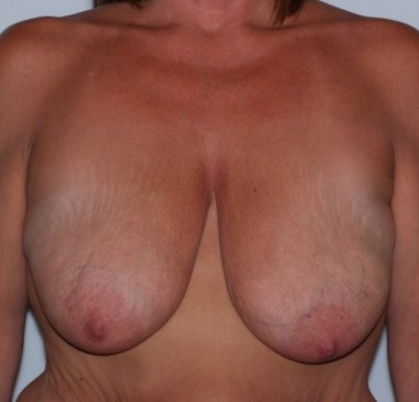 mastopexy3,front,before