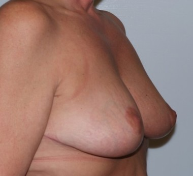 mastopexy3,oblique,after
