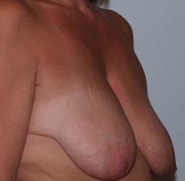 mastopexy3,oblique,before