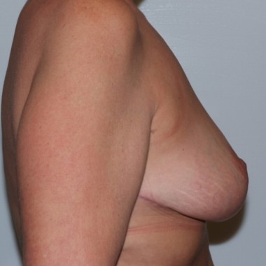 mastopexy3,side,after