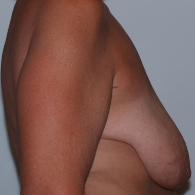 mastopexy3,side,before