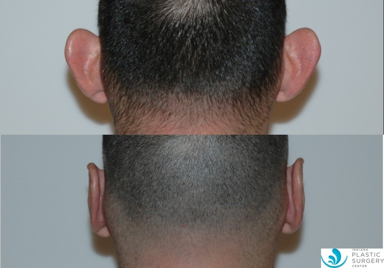 otoplasty2,before and after, back