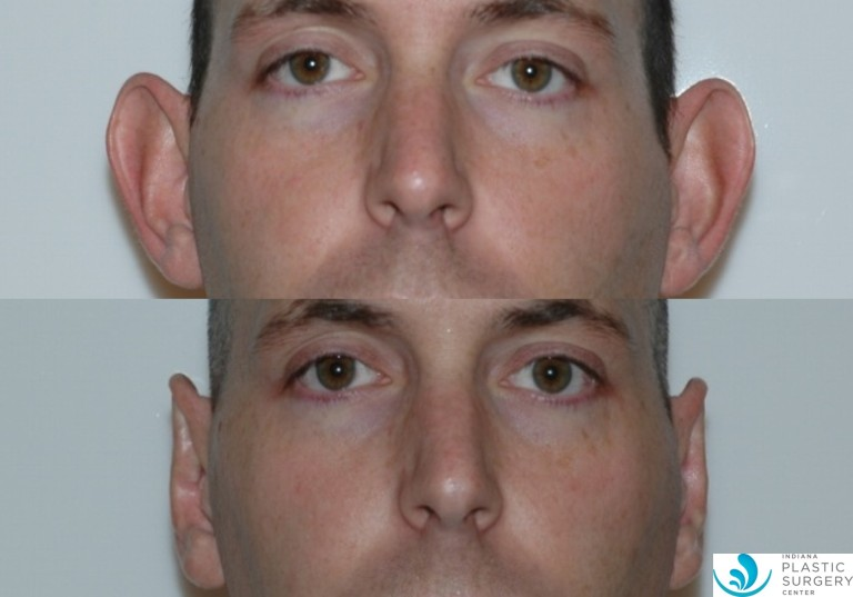 otoplasty2,before and after, front