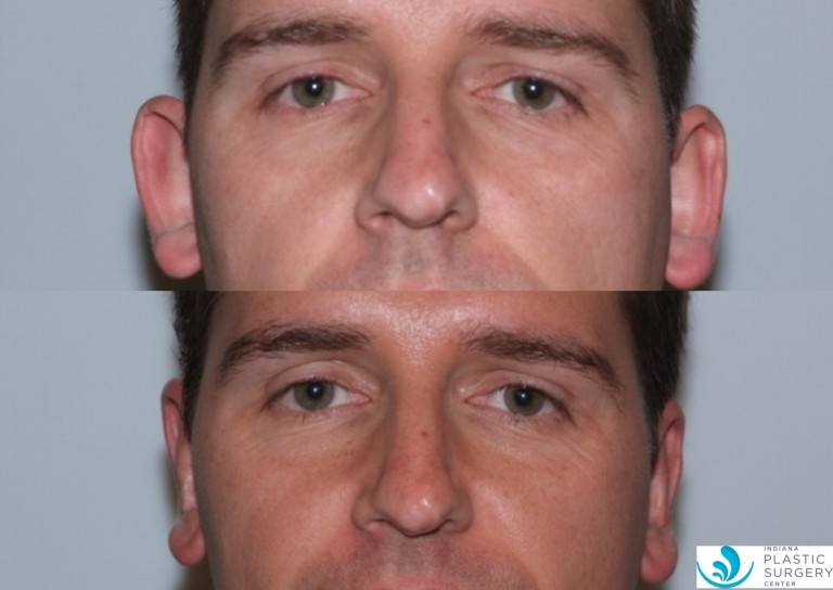 otoplasty3,before and after, front