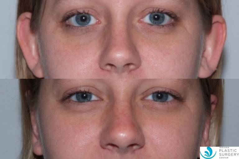 otoplasty4,before and after, front