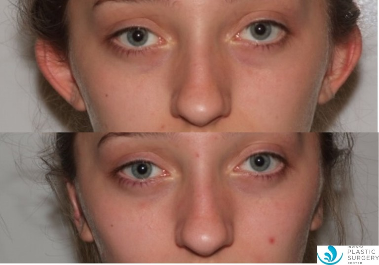 otoplasty5,before and after, front