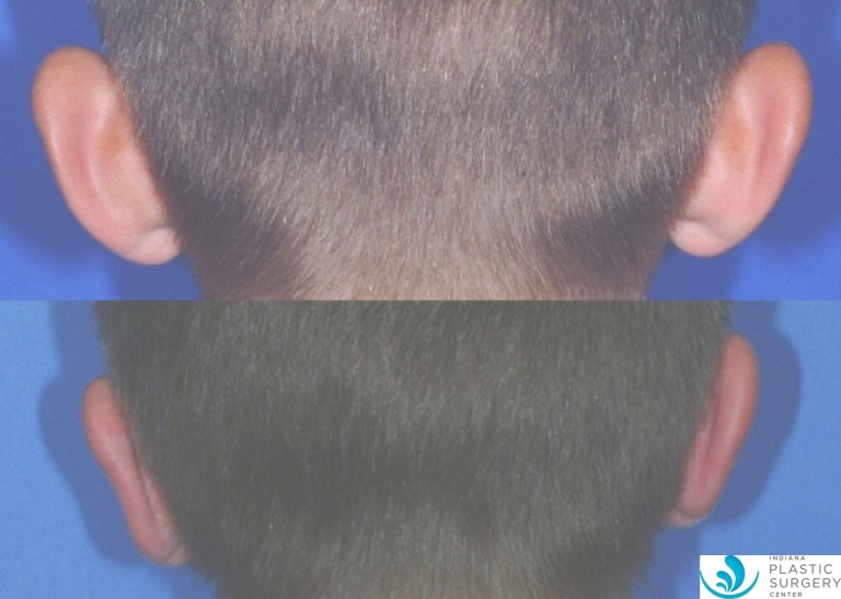 otoplasty6,before and after, back