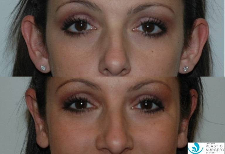 otoplasty7,before and after, front