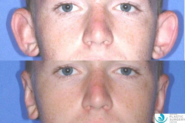 otoplasty8,before and after, front