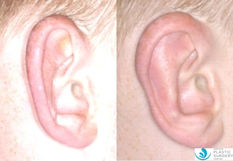 otoplasty8,before and after,closeup