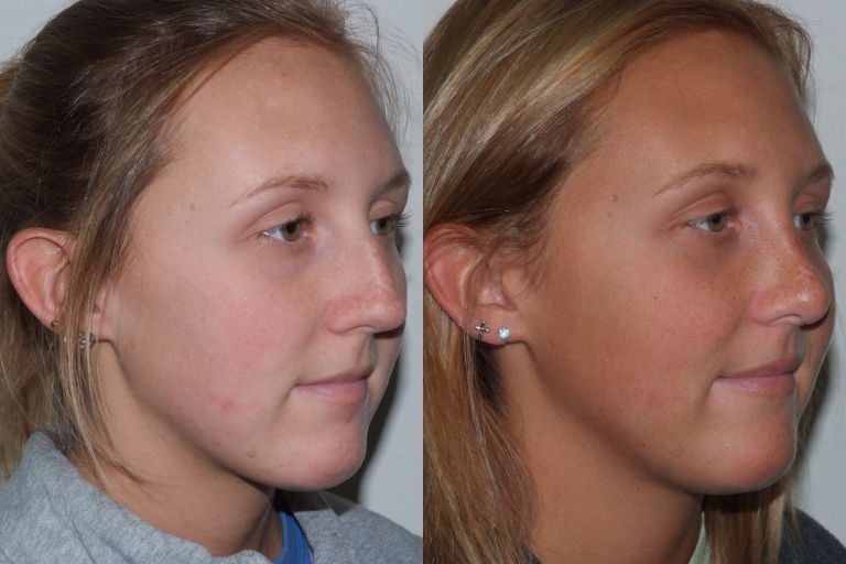 rhinoplasty2,oblique,before and after