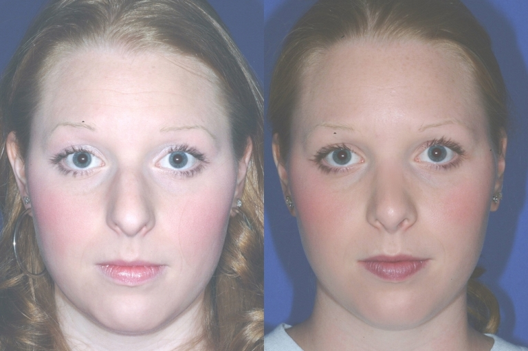 rhinoplasty3,front,before and after