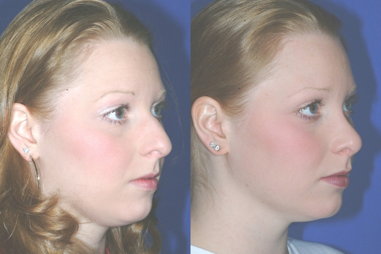 rhinoplasty3,oblique,before and after