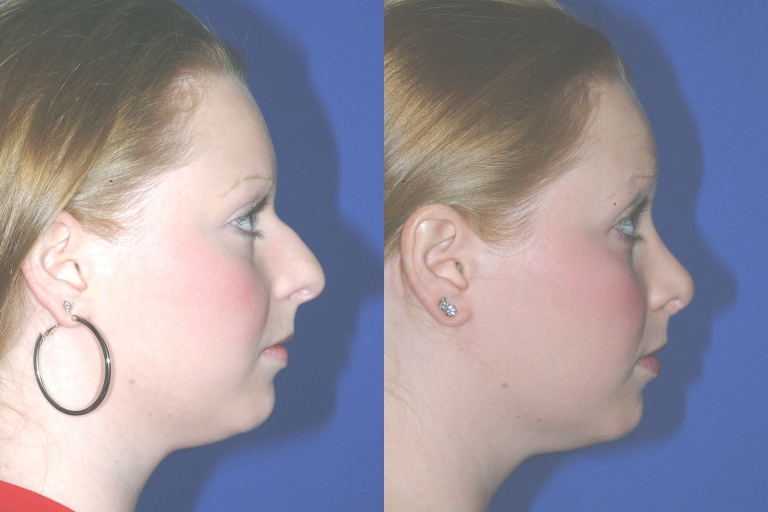 rhinoplasty3,side,before and after