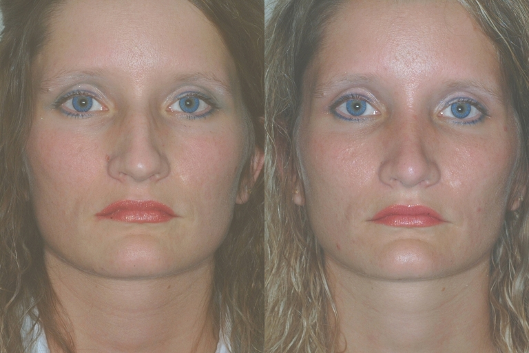rhinoplasty5,front,before and afer