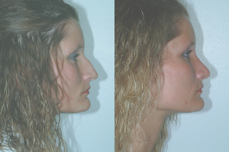 rhinoplasty5,side,before and after