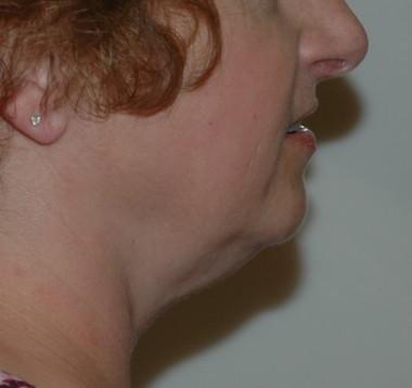 submentallipo2,side,before
