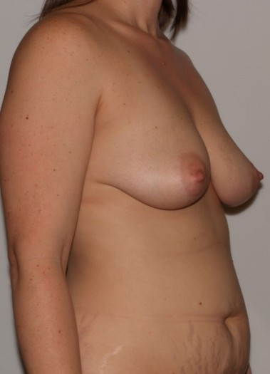mommymakeover2,oblique,before