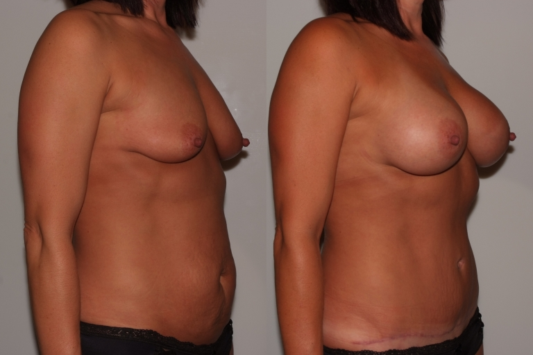 mommymakover5,b&a,oblique