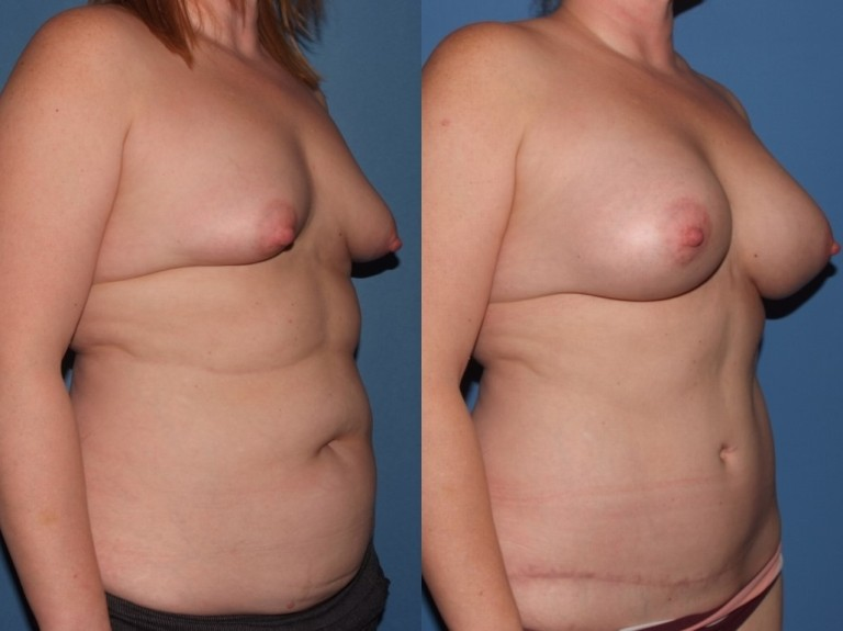 mommymakover6,b&a,oblique