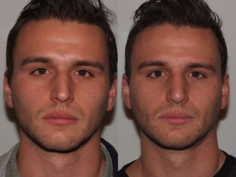 rhinoplasty7,front,before and after