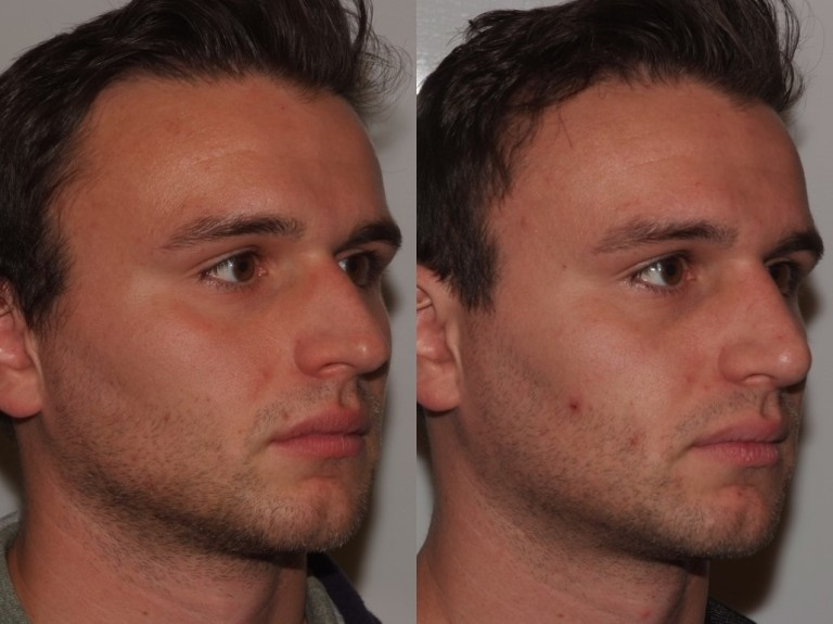 rhinoplasty7,oblique,before and after