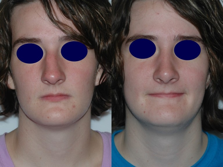 rhinoplasty8,front,before and after