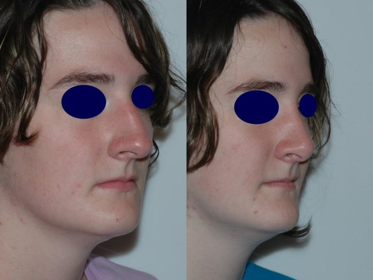 rhinoplasty8,oblique,before and after