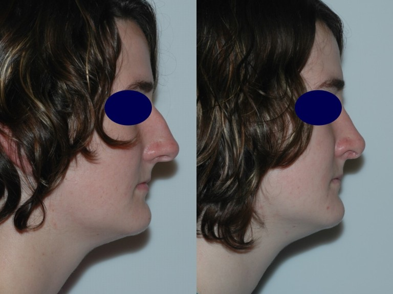 rhinoplasty8,side,before and after
