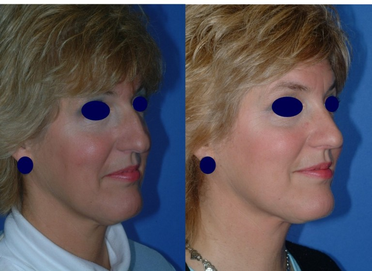 rhinoplasty91,oblique,before and after