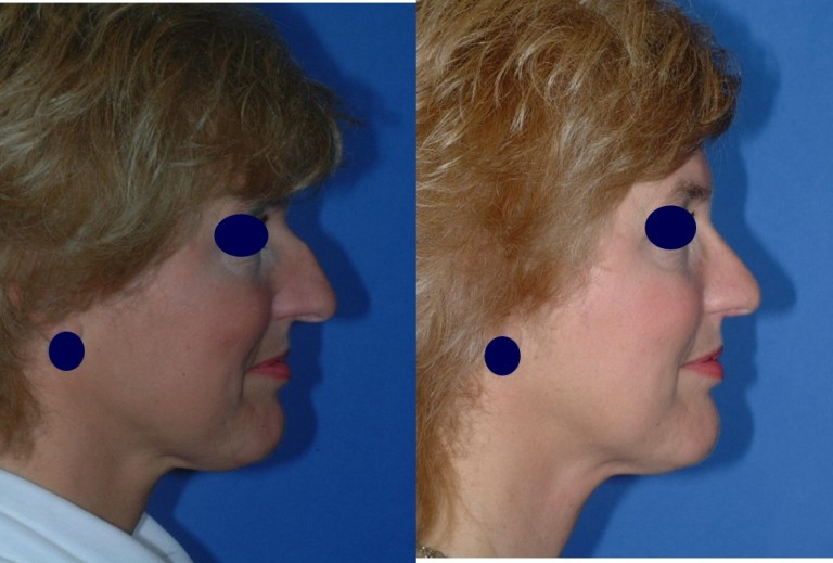 rhinoplasty91,side,before and after