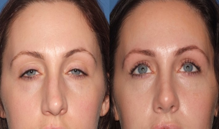rhinoplasty9,front,before and after