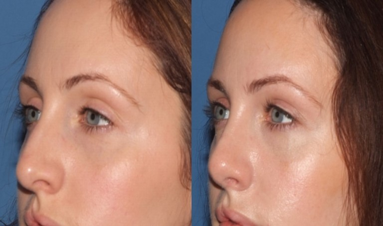 rhinoplasty9,oblique,before and after