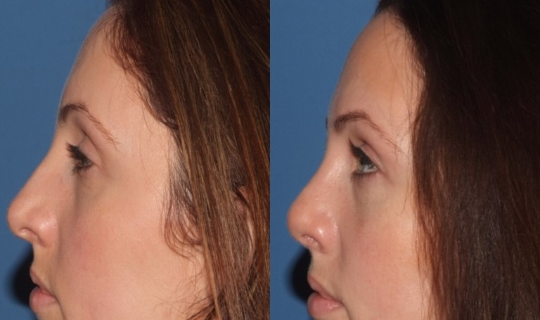 rhinoplasty9,side,before and after